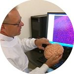 150 placental stem cell research into stroke therapy takes promising step forward article.jpg